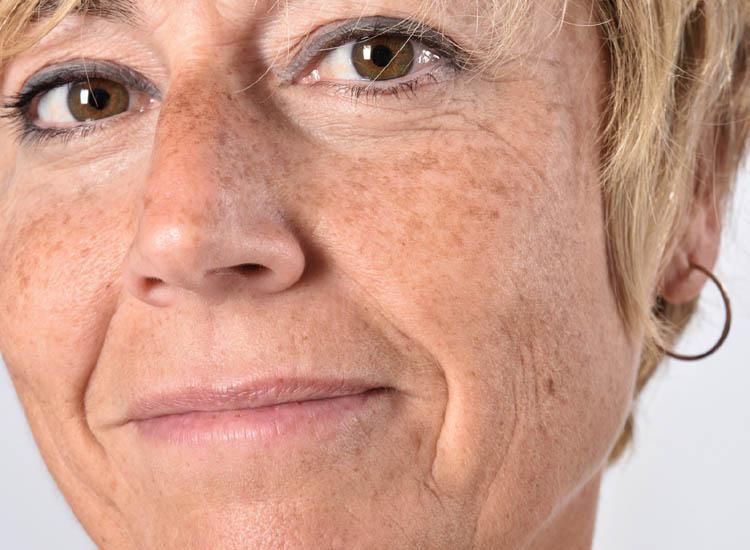 Age Spots / Skin Blemish Removal