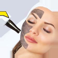 Carbon Laser Facials / Laser Treatments