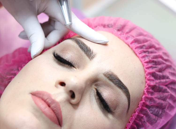 Laser Tattoo Eyebrow Removal