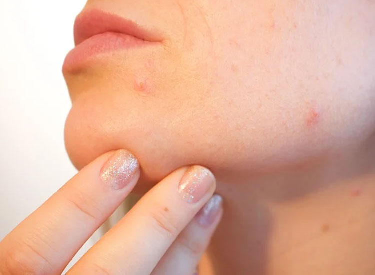 Skin Abnormalities / Skin Blemish Removal