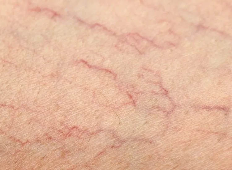 Spider Naevus / Skin Blemish Removal